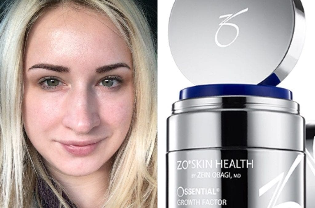 Charlie loves….ZO Ossential Growth Factor Serum!