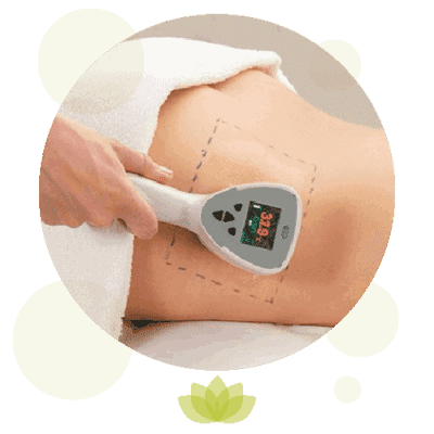 Exilis Elite Body treatments