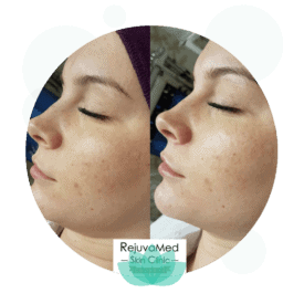 Dermaplaning – With Brightening Skin Peel
