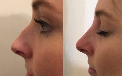 New Year – New Nose!