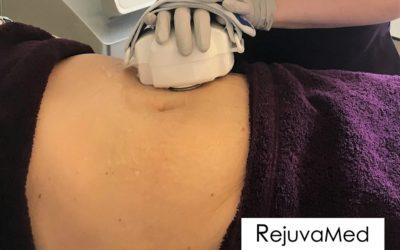 Cavitation – Instant inch loss body sculpting