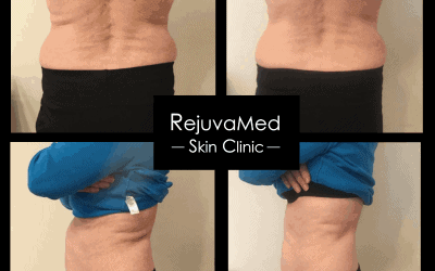 Amazing results with 3D Lipo!