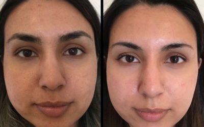 CO2 Laser Skin Resurfacing!