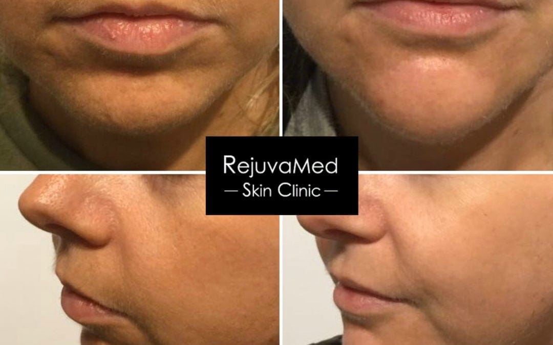 Dermal Fillers ~ Chin & Jawline Augmentation